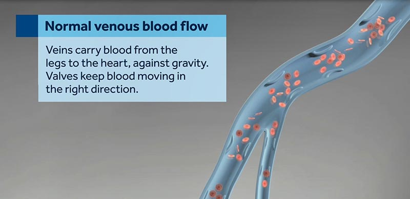 Normal Venous Flow