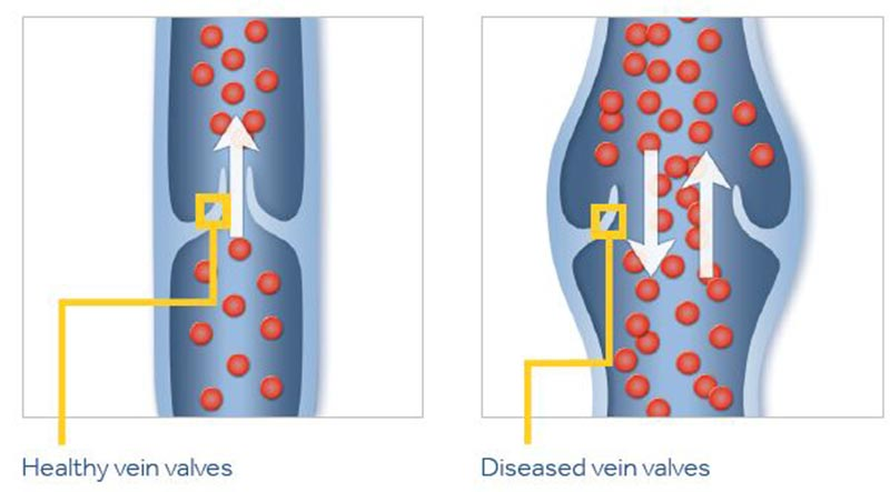 Varicose Veins Diagram